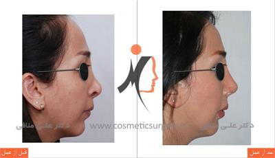 secondary rhinoplasty
