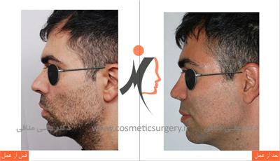 secondary rhinoplasty 2