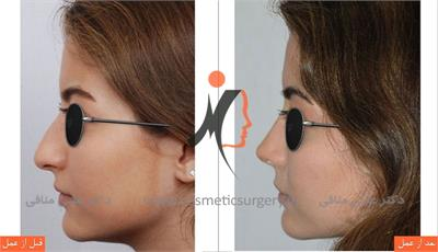 nouse cosmetic surgery